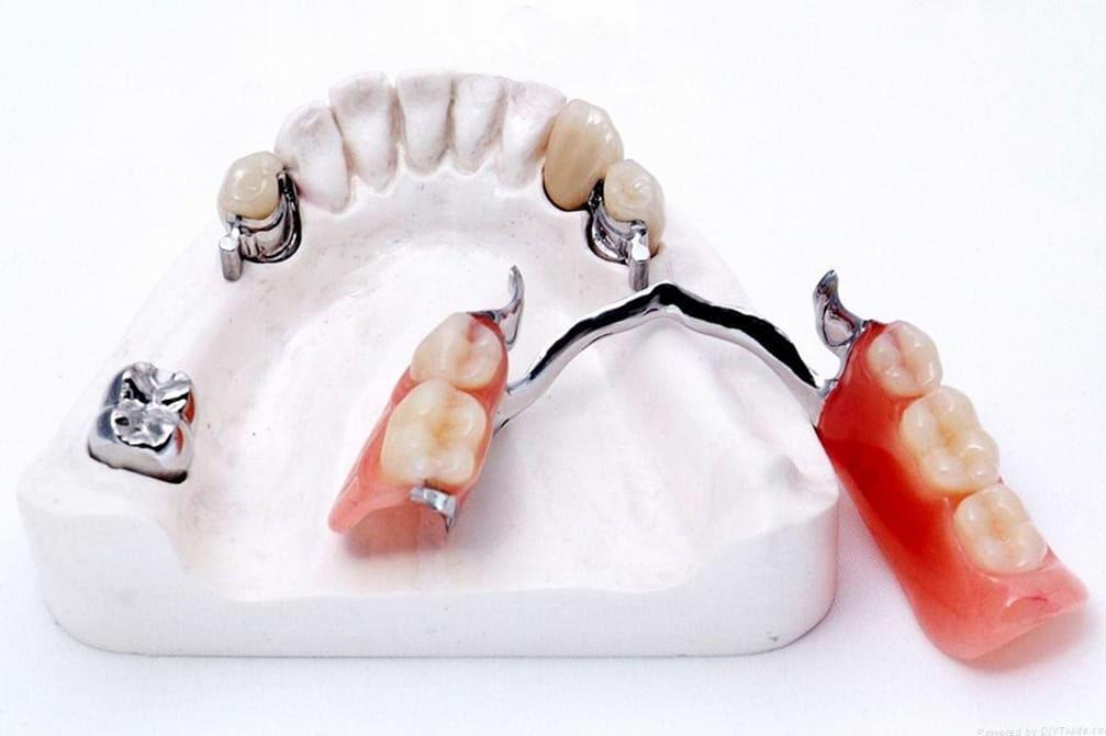 Зубные протезы в бресте цена
